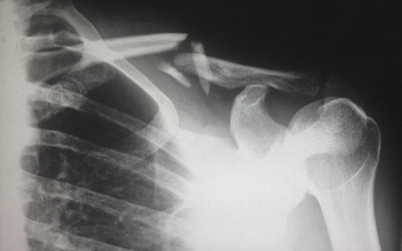 Fracture & Trauma care