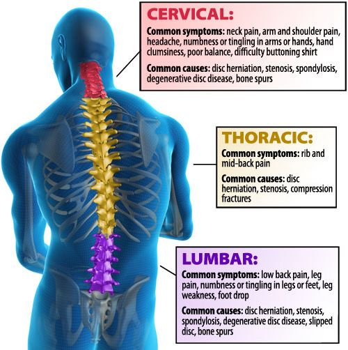 Spine Treament & Surgery